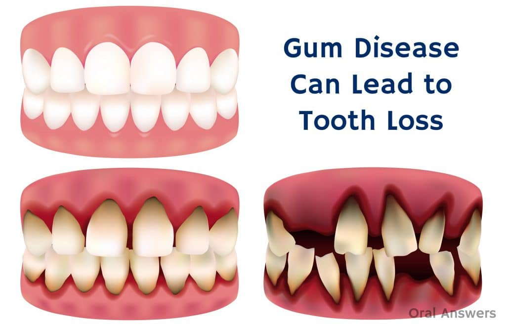 Cranbourne Dental Teeth