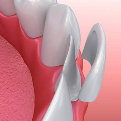 Cranbourne Dental teeth repair